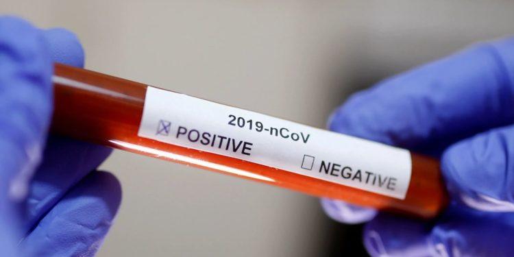 Resultado do teste de coronavírus